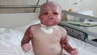 Savaşın acı yüzü Delal bebeğin inanılmaz kurtuluşu